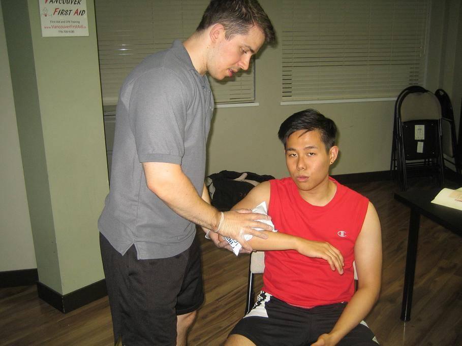 Ways to prevent scars - Edmonton First Aid